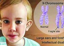 سندروم ایکس شگننده